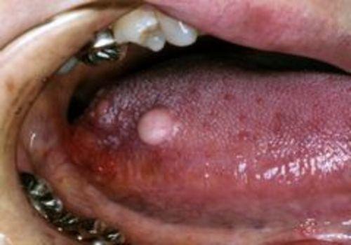 術前右舌側縁部に小豆大の腫瘤生じる。周囲との境界は明瞭で徐々に増大傾向を呈す。