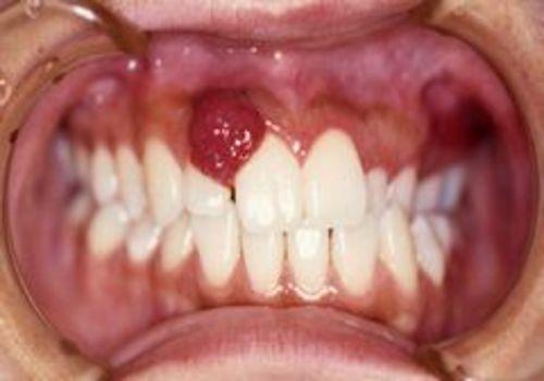<5>上顎前歯部に生じた血管腫性エプーリス