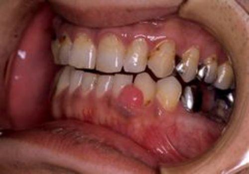 <6>下顎前歯部に生じた線維性エプーリス