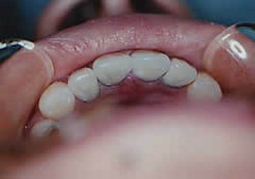 審美歯科 メタルボンド