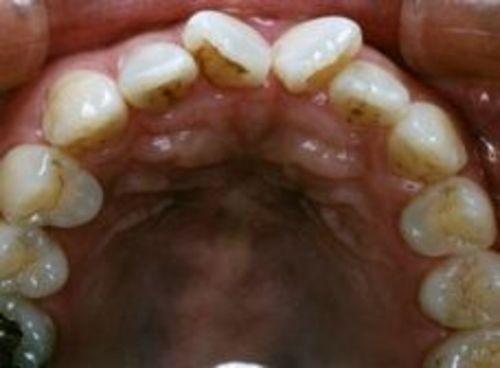 審美歯科 オールセラミック